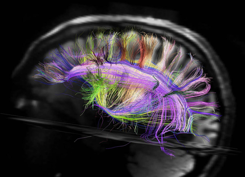 Diffusion Tensor Image of human Brain�s Connections