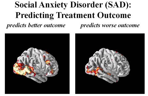 Schüchternheit medikamente gegen extreme Soziale Phobie